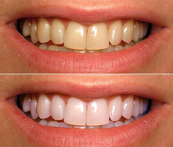 Карандаш для отбеливания зубов купить в аптеке цена